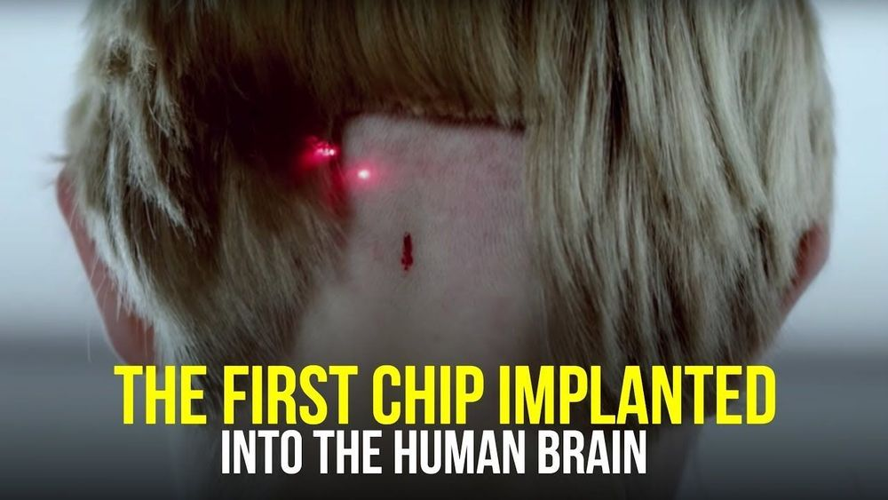 the first chip implanted into the human brain