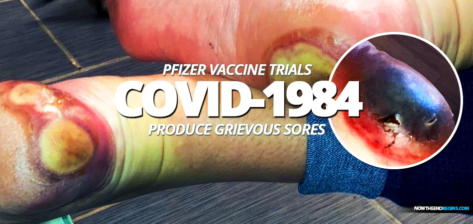 COVID-1984 vacc1n can produce grievous sores - proof