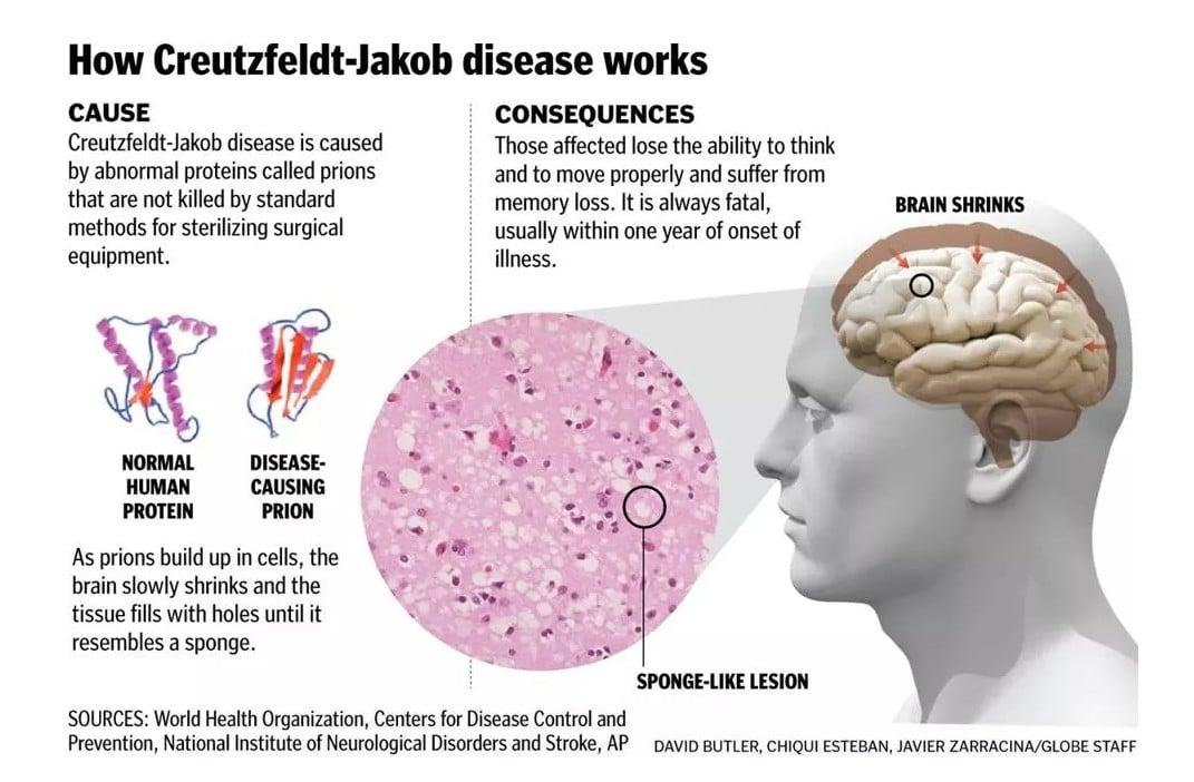 CJD disease is fatal