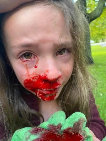 Five-year-old Girl left bleeding from the eye after being forced to take PCR test